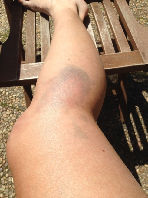 The outside of my right knee is also bruised